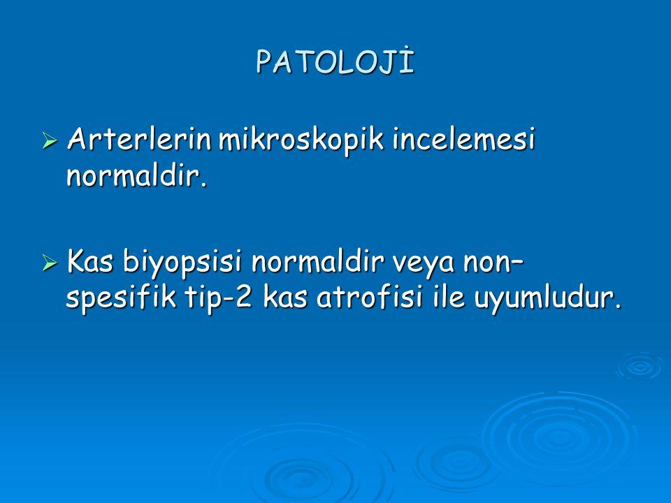 PATOLOJİ  Arterlerin mikroskopik incelemesi normaldir.  Kas biyopsisi normaldir veya non– spesifik tip-2 kas atrofisi ile uyumludur.