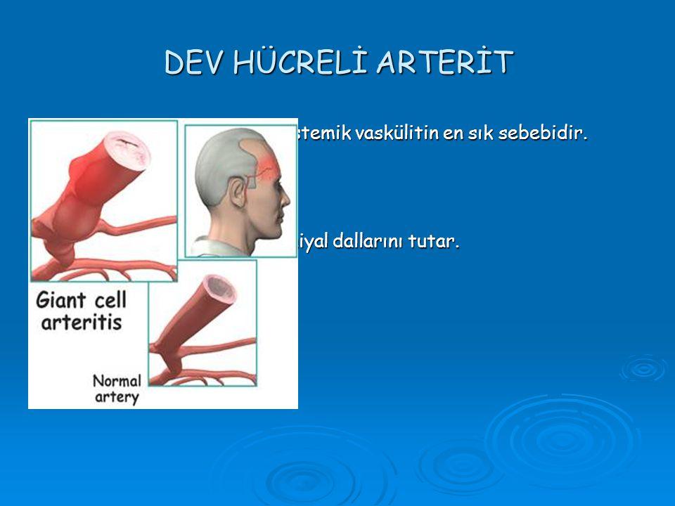 DEV HÜCRELİ ARTERİT  DHA, yaşlılarda görülen sistemik vaskülitin en sık sebebidir.  50 yaş üstünde görülür.  Karotis arterin ekstrakraniyal dalları
