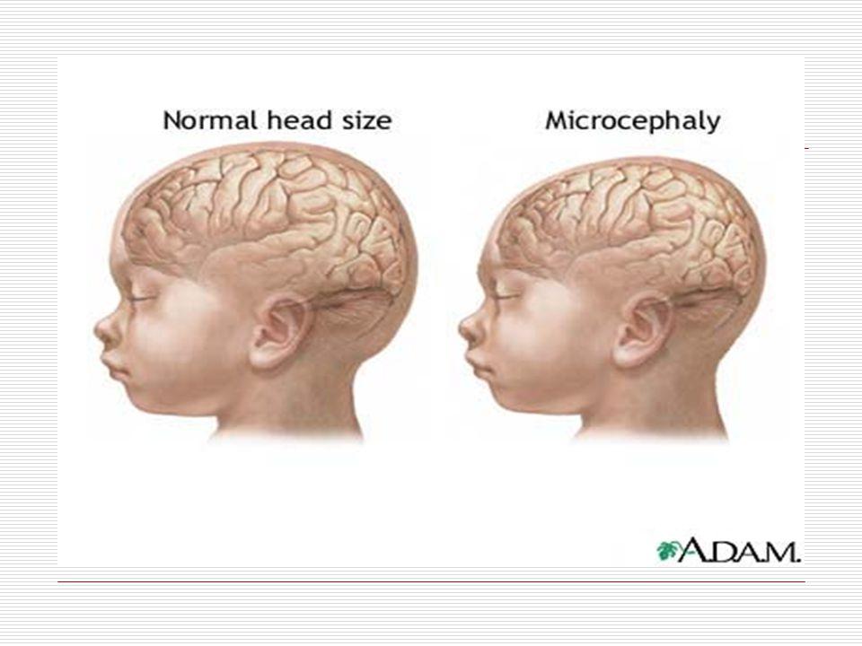  Hastaların %83'ünde adenoma sebaceum vardır.