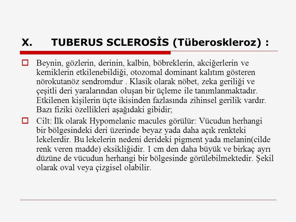 X.TUBERUS SCLEROSİS (Tüberoskleroz) :  Beynin, gözlerin, derinin, kalbin, böbreklerin, akciğerlerin ve kemiklerin etkilenebildiği, otozomal dominant