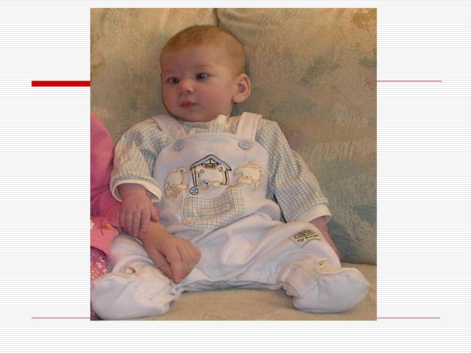 IV.SİNDAKTİLİ:  Doğuştan el ya da ayak parmaklarının yapışık olması durumuna sindaktili denir.