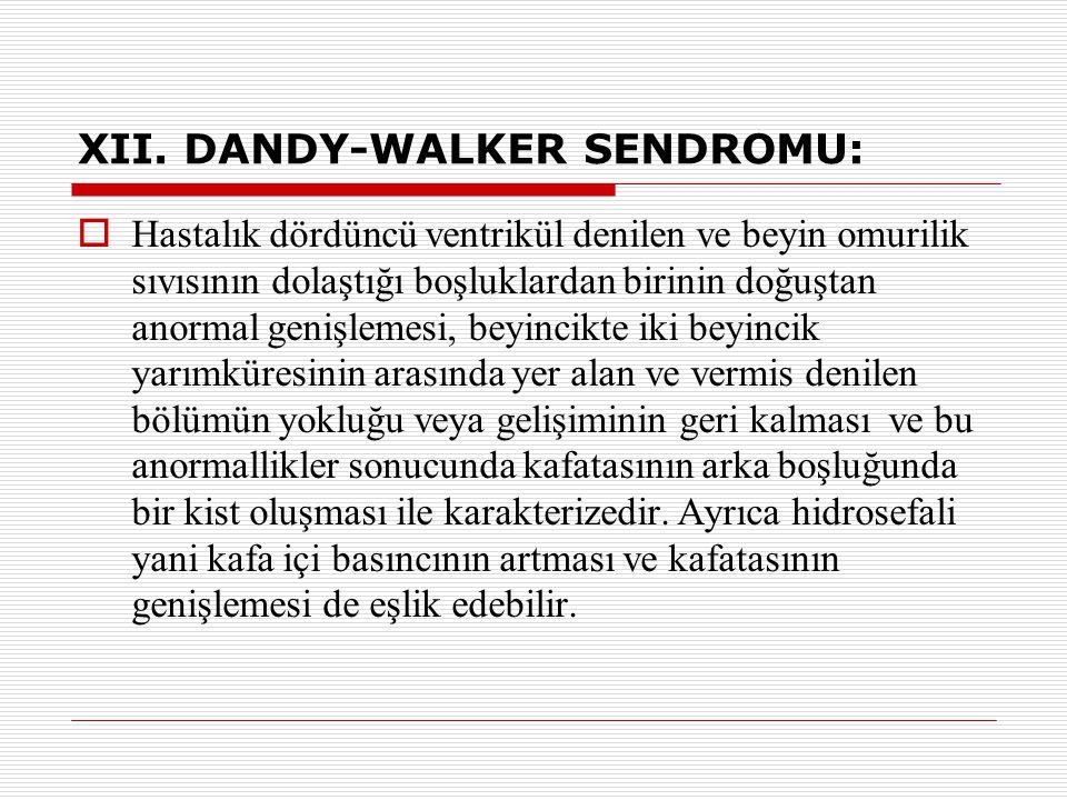 XII. DANDY-WALKER SENDROMU:  Hastalık dördüncü ventrikül denilen ve beyin omurilik sıvısının dolaştığı boşluklardan birinin doğuştan anormal genişlem