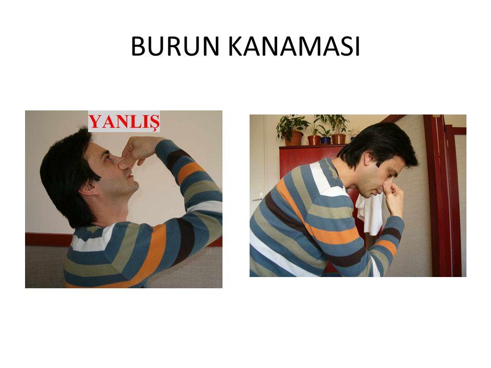BURUN KANAMASI