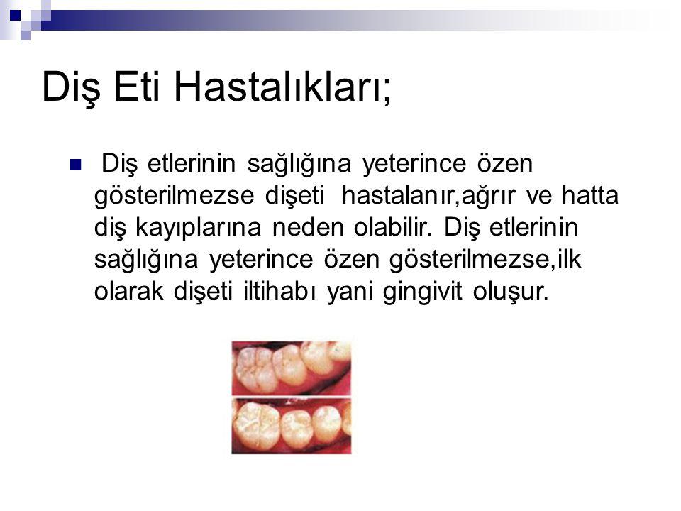 Diş Eti Hastalıkları; Diş etlerinin sağlığına yeterince özen gösterilmezse dişeti hastalanır,ağrır ve hatta diş kayıplarına neden olabilir. Diş etleri