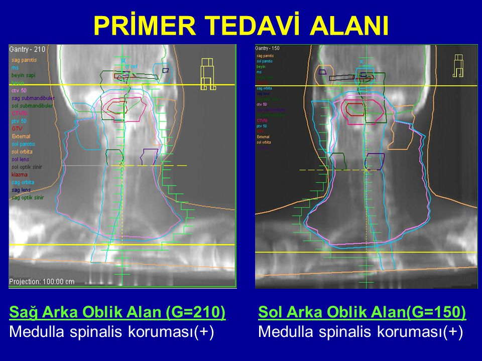 PRİMER TEDAVİ ALANI Sağ Arka Oblik Alan (G=210) Medulla spinalis koruması(+) Sol Arka Oblik Alan(G=150) Medulla spinalis koruması(+)