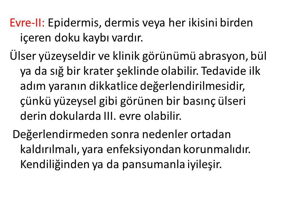 Evre-II: Epidermis, dermis veya her ikisini birden içeren doku kaybı vardır.