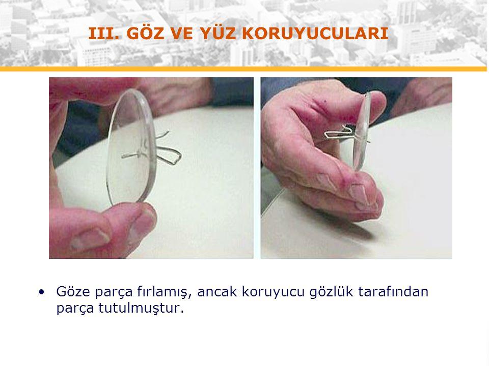 US&A (v. 2/07) Göze parça fırlamış, ancak koruyucu gözlük tarafından parça tutulmuştur. III. GÖZ VE YÜZ KORUYUCULARI
