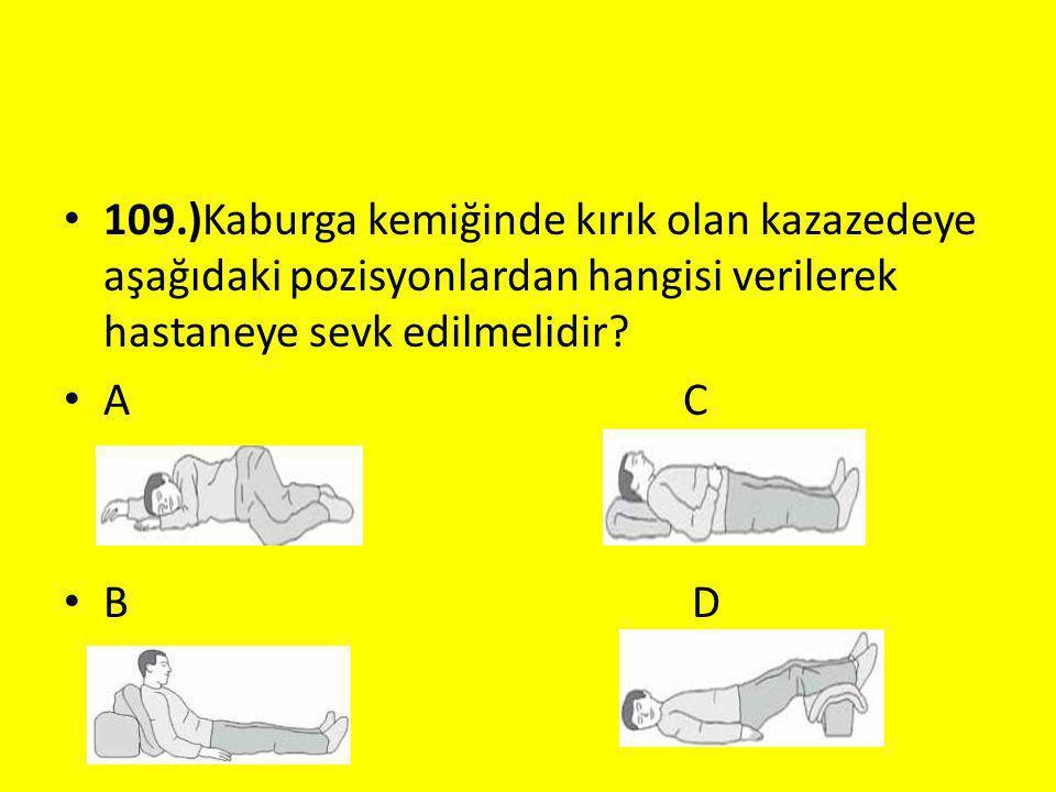 109.)Kaburga kemiğinde kırık olan kazazedeye aşağıdaki pozisyonlardan hangisi verilerek hastaneye sevk edilmelidir? A C B D