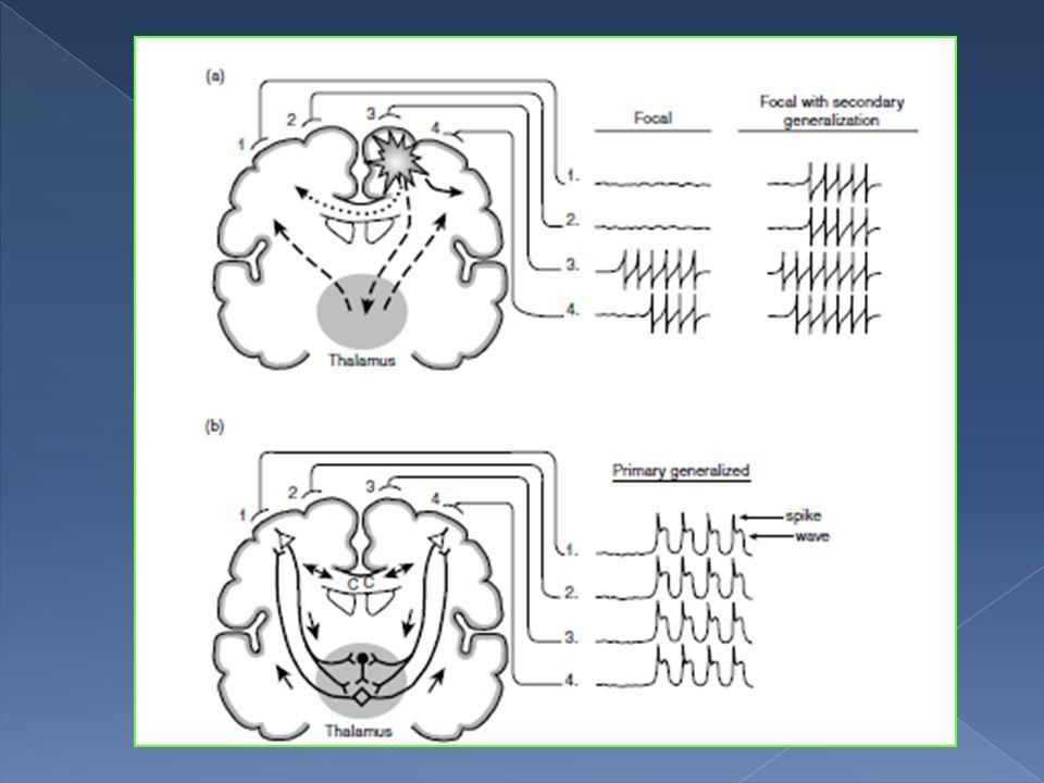  Akut semptomatik nöbet:  Akut semptomatik nöbet: Akut sistemik, metabolik veya toksik olaylar neticesinde santral sinir sisteminin etkilenmesi sonucunda ortaya çıkan nöbetlerdir.