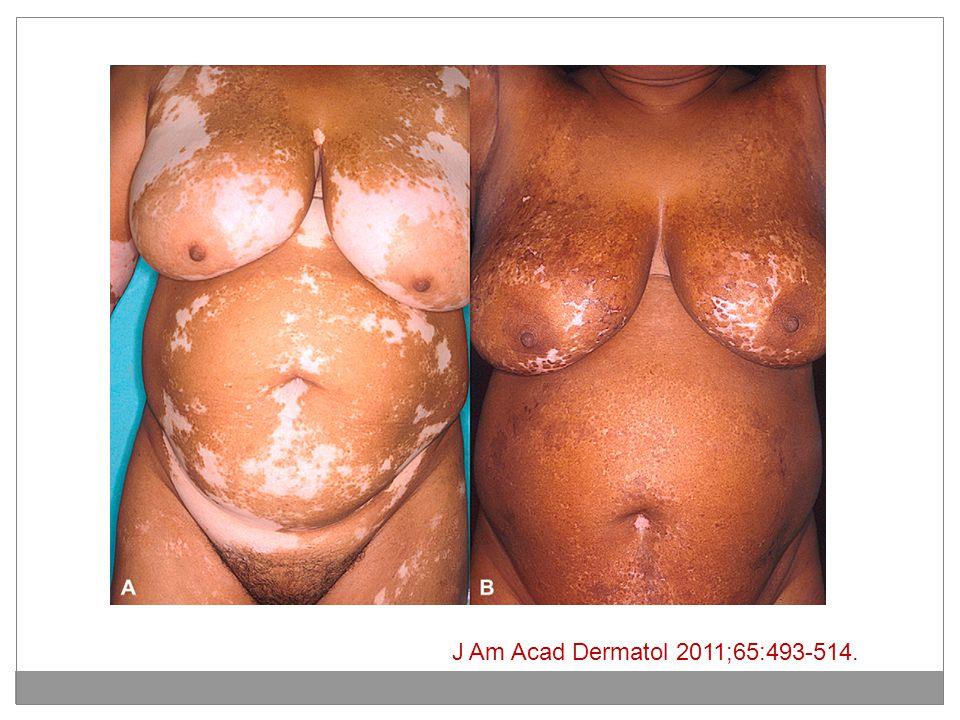 J Am Acad Dermatol 2011;65:493-514.
