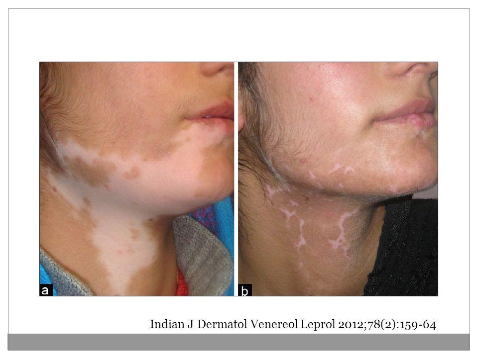 Indian J Dermatol Venereol Leprol 2012;78(2):159-64