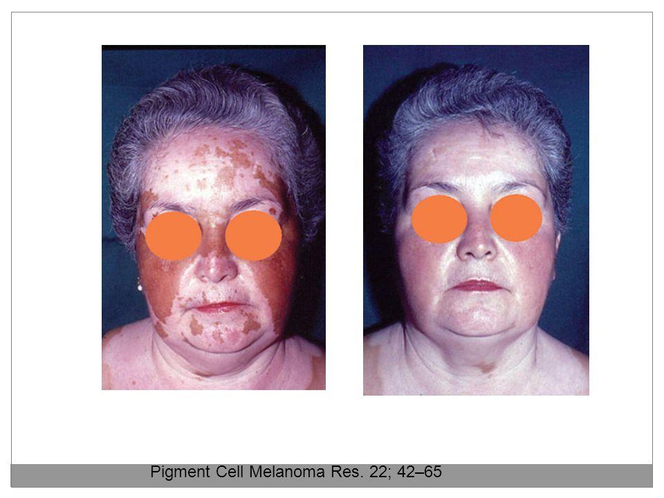 Pigment Cell Melanoma Res. 22; 42–65
