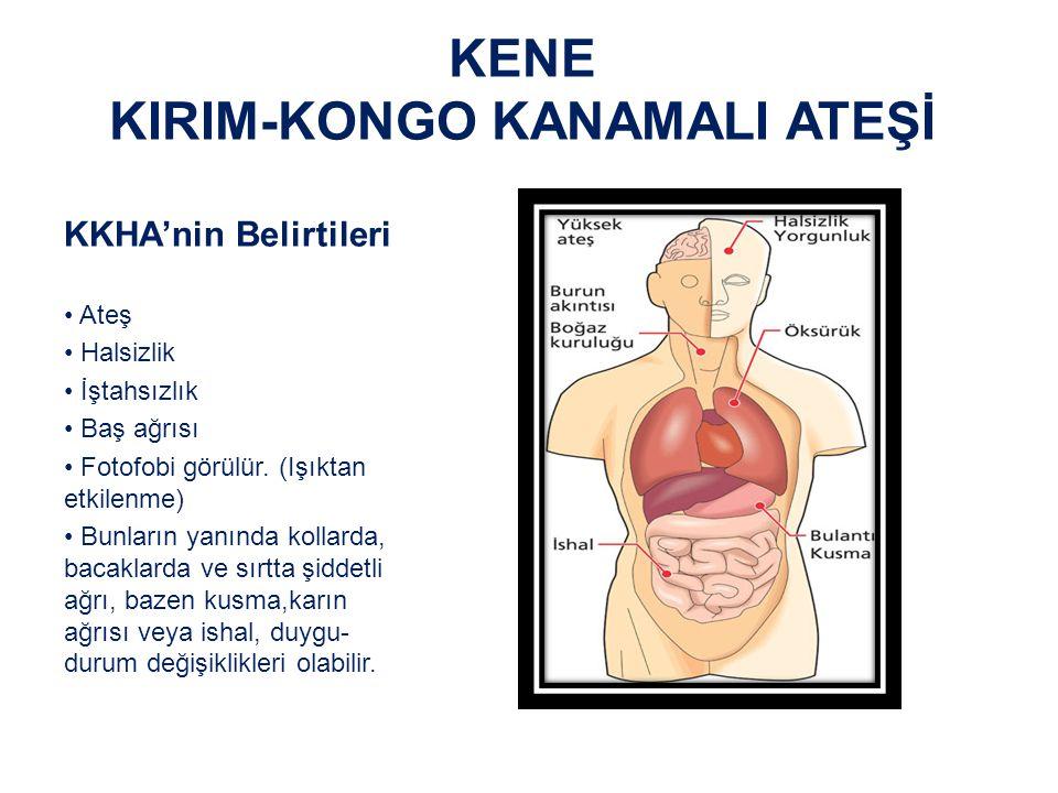 KENE KIRIM-KONGO KANAMALI ATEŞİ KKHA'nin Belirtileri Kanama pıhtılaşma mekanizmalarının bozulması sonucu; – Yüz ve göğüste kırmızı döküntüler – Gözlerde kızarıklık, – Gövde, kol ve bacaklarda morluklar – Burun kanaması, dışkıda ve idrarda kan görülür.