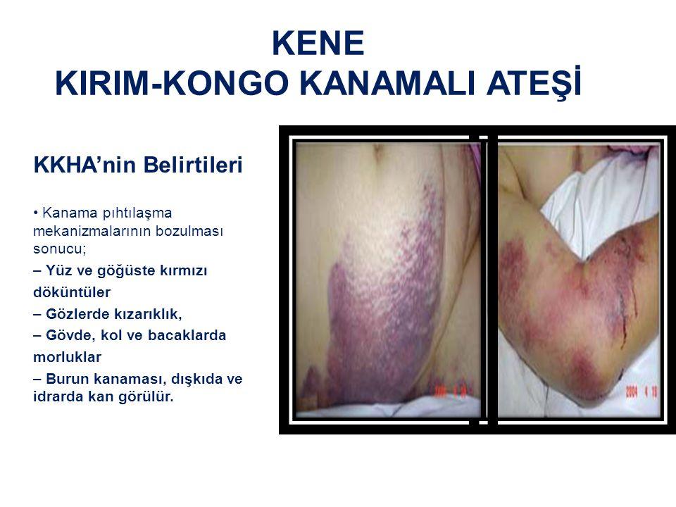 KENE KIRIM-KONGO KANAMALI ATEŞİ KKKA Tedavisi : Çoğu virüs hastalıklarında olduğu gibi bu hastalığın da doğrudan bir tedavisi ve etkili bir ilacı olmayıp daha çok destek tedavisi ve bulguları gidermeye yönelik tedaviler ve bazı antivirütik ilaçlar uygulanmaktadır.