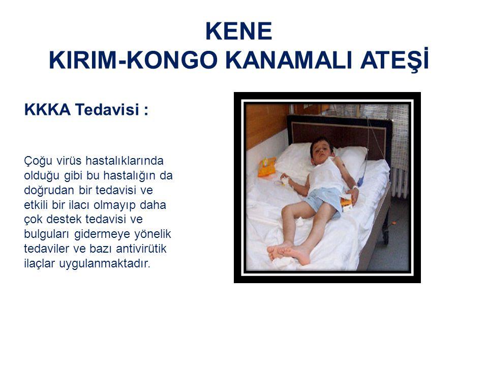 KENE KIRIM-KONGO KANAMALI ATEŞİ KKKA Tedavisi: Erken dönemde başlanılan destek tedavi daha başarılı sonuç vermektedir.
