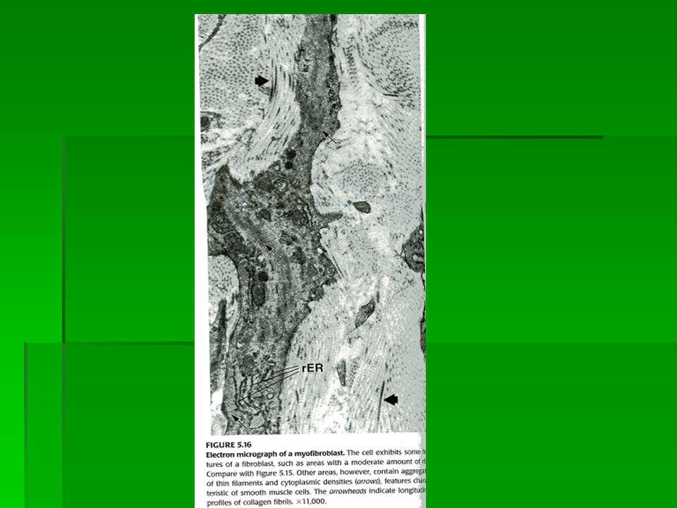 Histiosit (Makrofaj) Histiosit (Makrofaj) En sık görülen 2.Tip hücre Fagositoz yeteneği Monositlerden kökenlenir Tek nüve