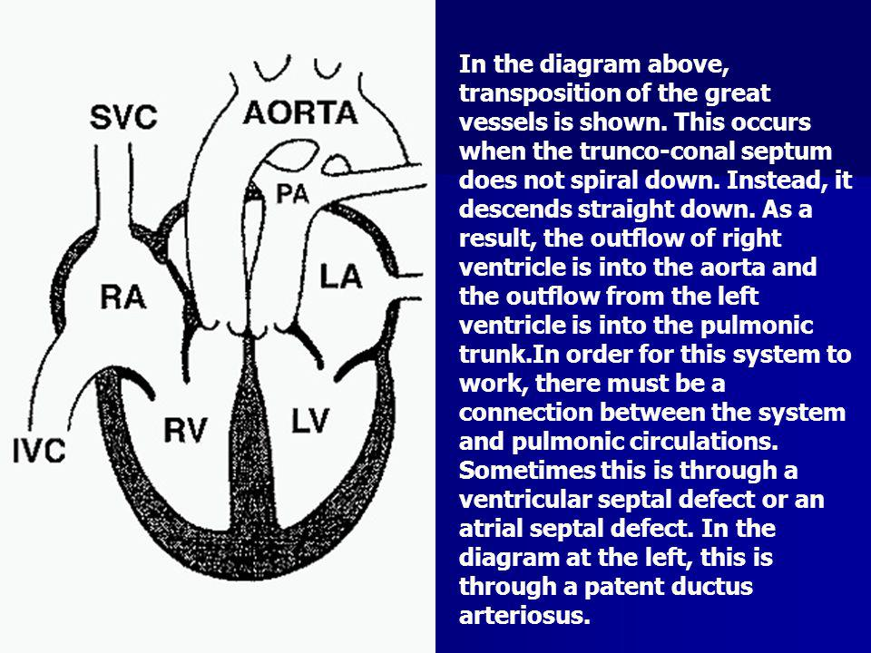 In the diagram above, transposition of the great vessels is shown. This occurs when the trunco-conal septum does not spiral down. Instead, it descends