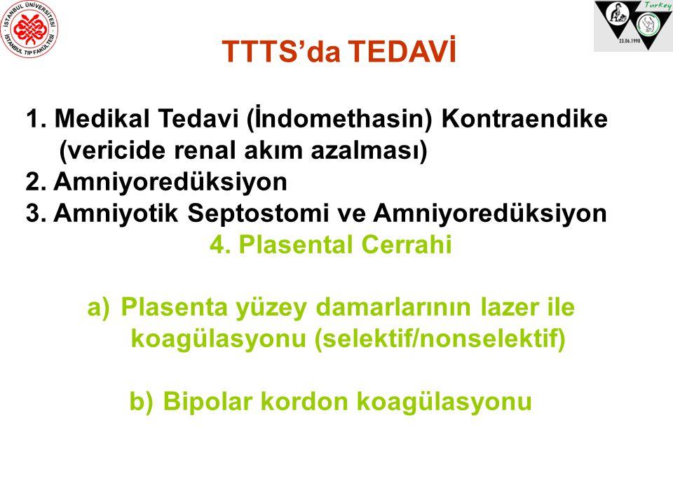 TTTS'da TEDAVİ 1. Medikal Tedavi (İndomethasin) Kontraendike (vericide renal akım azalması) 2. Amniyoredüksiyon 3. Amniyotik Septostomi ve Amniyoredük