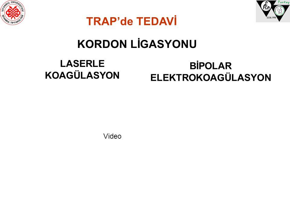 TRAP'de TEDAVİ KORDON LİGASYONU BİPOLAR ELEKTROKOAGÜLASYON LASERLE KOAGÜLASYON Video
