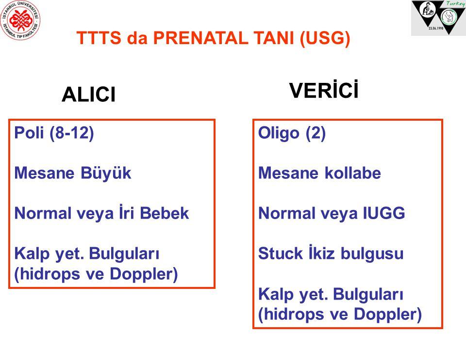 TTTS da PRENATAL TANI (USG) Poli (8-12) Mesane Büyük Normal veya İri Bebek Kalp yet. Bulguları (hidrops ve Doppler) Oligo (2) Mesane kollabe Normal ve