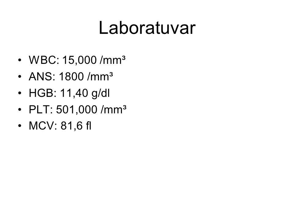 Laboratuvar WBC: 15,000 /mm³ ANS: 1800 /mm³ HGB: 11,40 g/dl PLT: 501,000 /mm³ MCV: 81,6 fl