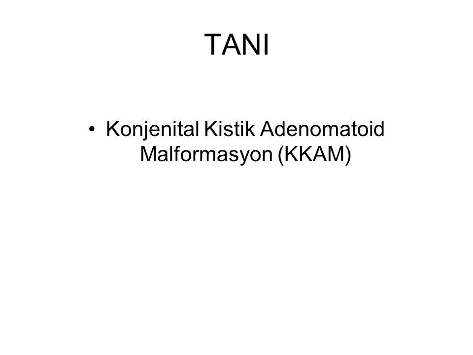 TANI Konjenital Kistik Adenomatoid Malformasyon (KKAM)