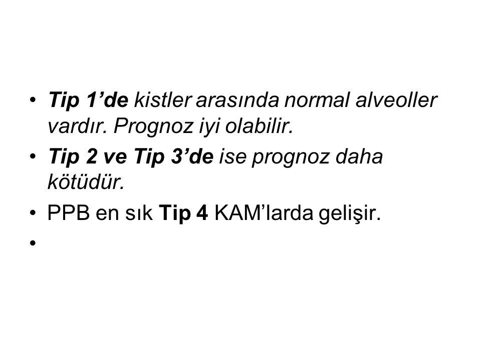 Tip 1'de kistler arasında normal alveoller vardır. Prognoz iyi olabilir. Tip 2 ve Tip 3'de ise prognoz daha kötüdür. PPB en sık Tip 4 KAM'larda gelişi