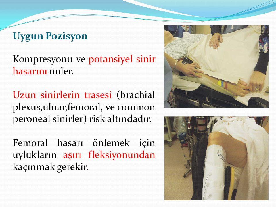 Uygun Pozisyon Kompresyonu ve potansiyel sinir hasarını önler. Uzun sinirlerin trasesi (brachial plexus,ulnar,femoral, ve common peroneal sinirler) ri