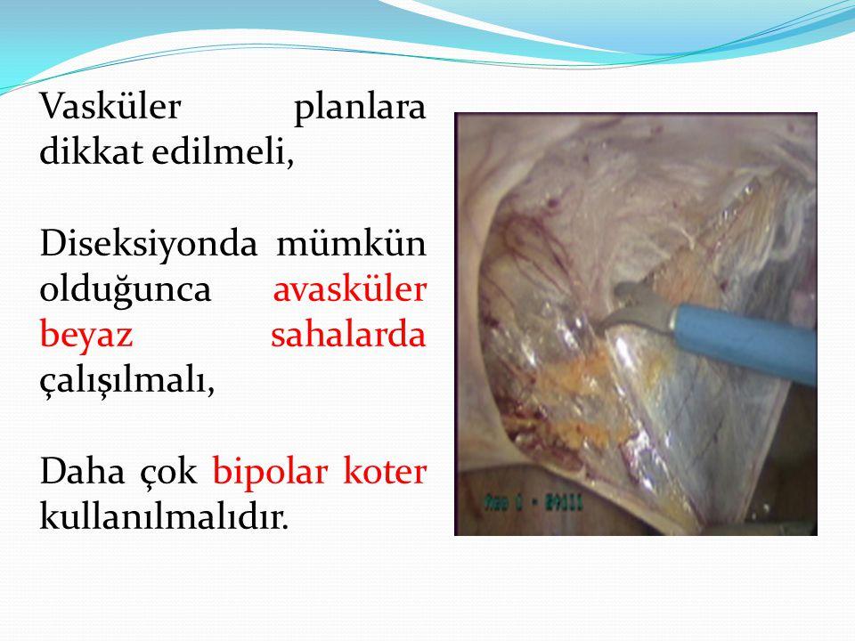 Vasküler planlara dikkat edilmeli, Diseksiyonda mümkün olduğunca avasküler beyaz sahalarda çalışılmalı, Daha çok bipolar koter kullanılmalıdır.