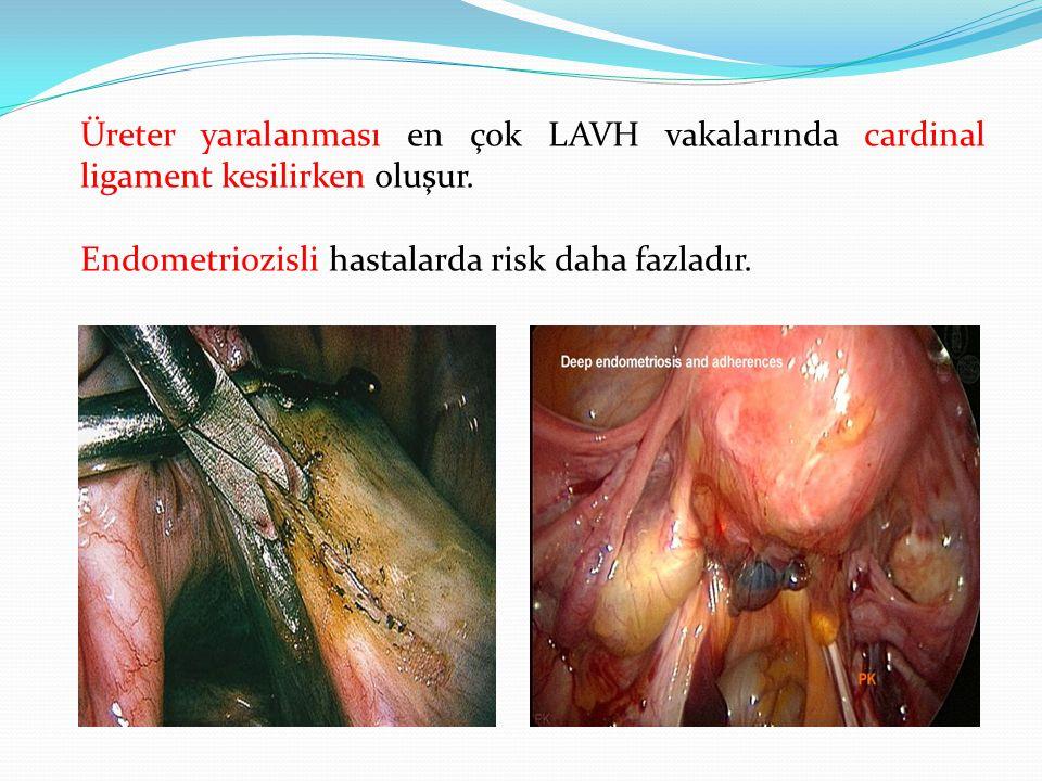Üreter yaralanması en çok LAVH vakalarında cardinal ligament kesilirken oluşur. Endometriozisli hastalarda risk daha fazladır.
