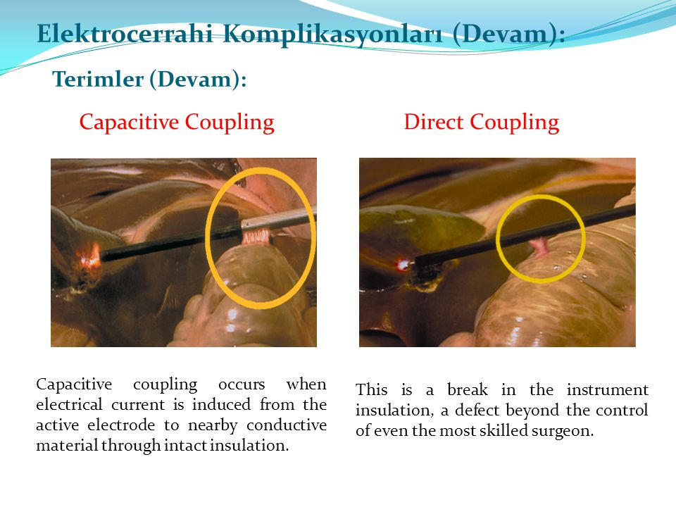 Capacitive Coupling Elektrocerrahi Komplikasyonları (Devam): Terimler (Devam): Direct Coupling This is a break in the instrument insulation, a defect beyond the control of even the most skilled surgeon.