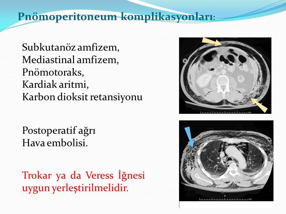 Pnömoperitoneum komplikasyonları : Subkutanöz amfizem, Mediastinal amfizem, Pnömotoraks, Kardiak aritmi, Karbon dioksit retansiyonu Trokar ya da Veres