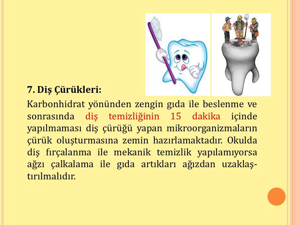 7. Diş Çürükleri: Karbonhidrat yönünden zengin gıda ile beslenme ve sonrasında diş temizliğinin 15 dakika içinde yapılmaması diş çürüğü yapan mikroorg