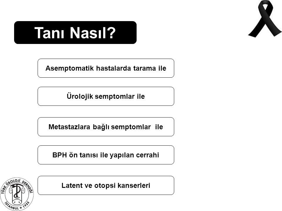 Tanı Nasıl? Asemptomatik hastalarda tarama ile Ürolojik semptomlar ile Metastazlara bağlı semptomlar ile BPH ön tanısı ile yapılan cerrahi Latent ve o