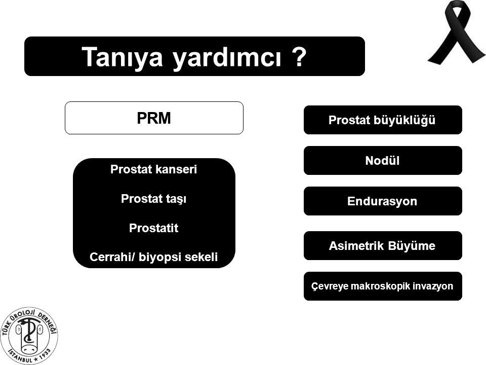 Tanıya yardımcı ? PRM Prostat büyüklüğü Nodül Endurasyon Asimetrik Büyüme Çevreye makroskopik invazyon Prostat kanseri Prostat taşı Prostatit Cerrahi/