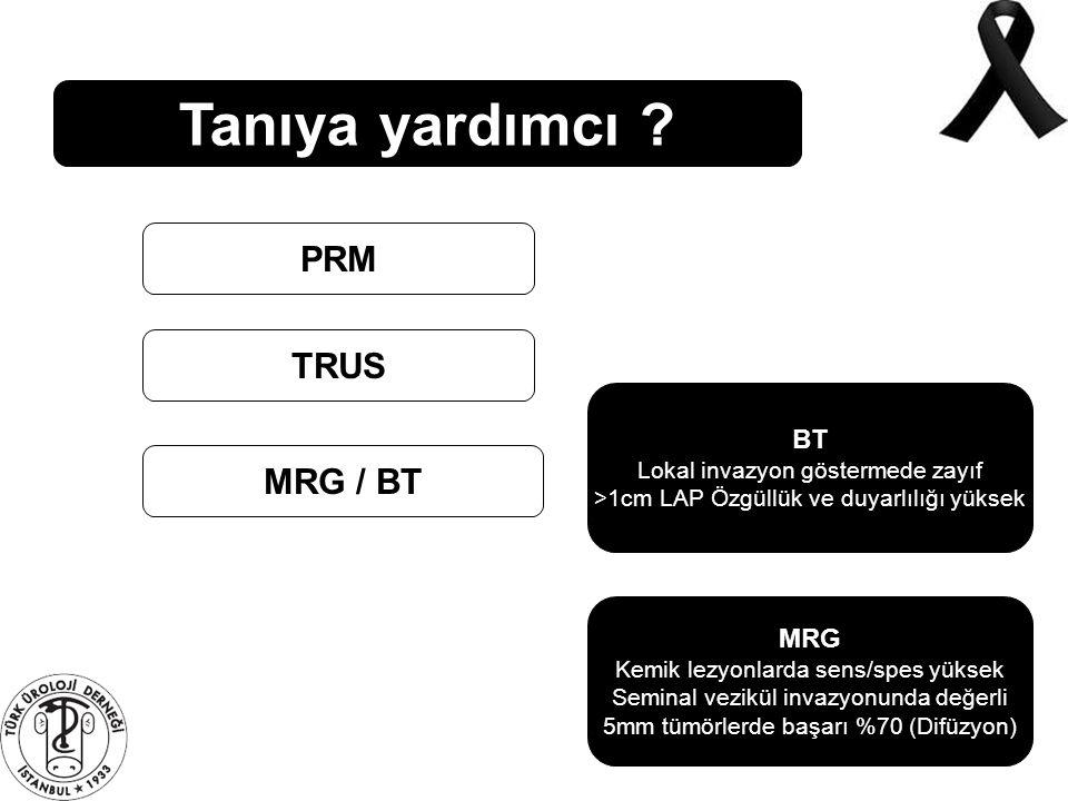 Tanıya yardımcı ? PRM TRUS MRG / BT BT Lokal invazyon göstermede zayıf >1cm LAP Özgüllük ve duyarlılığı yüksek MRG Kemik lezyonlarda sens/spes yüksek