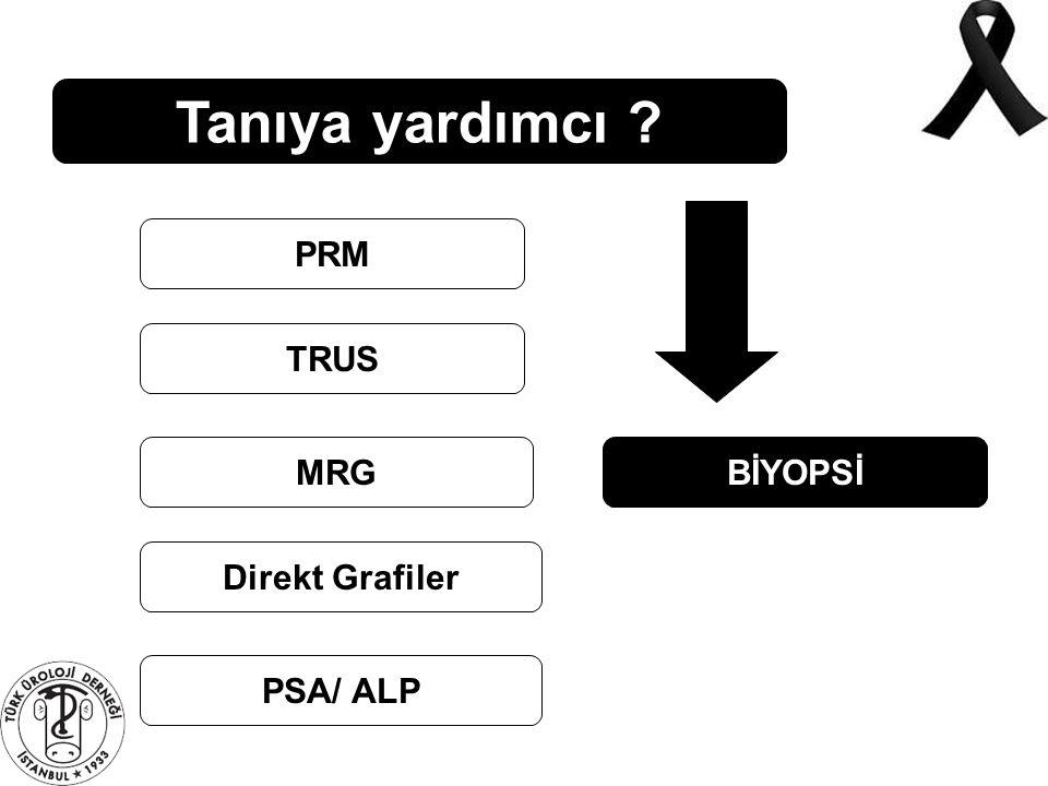 Tanıya yardımcı ? PRM TRUS MRG Direkt Grafiler PSA/ ALP BİYOPSİ