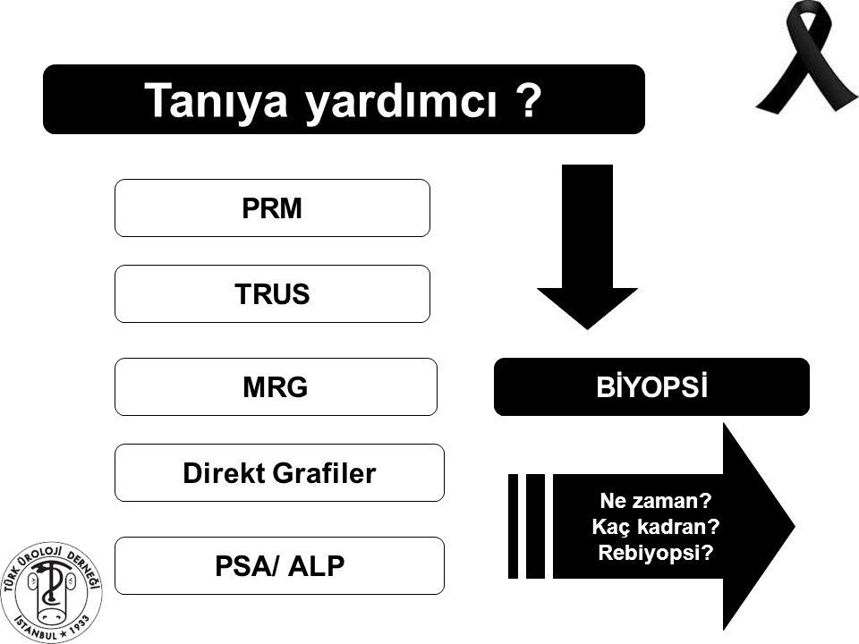 Tanıya yardımcı ? PRM TRUS MRG Direkt Grafiler PSA/ ALP BİYOPSİ Ne zaman? Kaç kadran? Rebiyopsi?