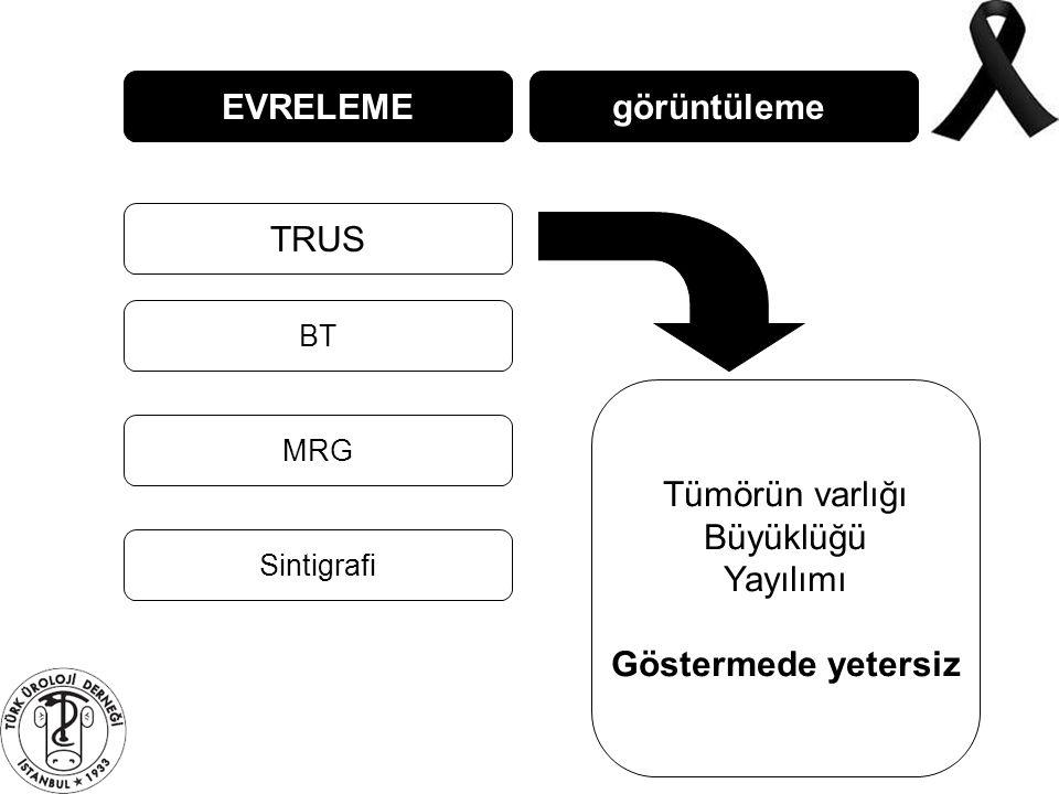EVRELEME TRUS BT MRG görüntüleme Sintigrafi Tümörün varlığı Büyüklüğü Yayılımı Göstermede yetersiz