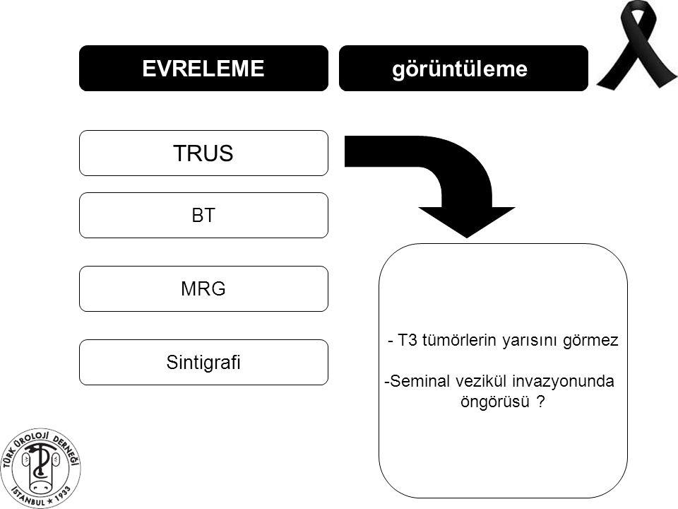 EVRELEME TRUS BT MRG görüntüleme Sintigrafi - T3 tümörlerin yarısını görmez -Seminal vezikül invazyonunda öngörüsü ?
