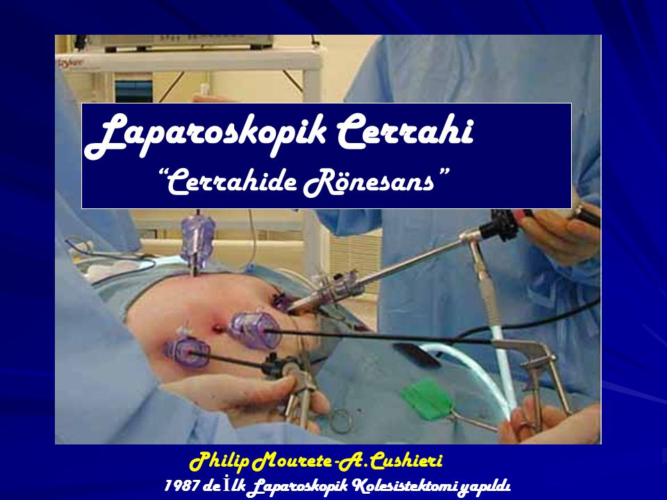 Philip Mourete -A.Cushieri 1987 de İ lk Laparoskopik Kolesistektomi yapıldı Laparoskopik Cerrahi Cerrahide Rönesans