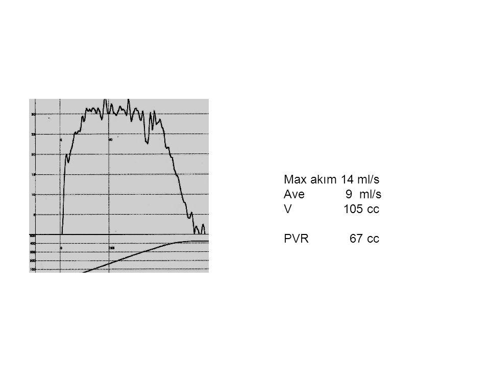 Max akım 14 ml/s Ave 9 ml/s V 105 cc PVR 67 cc