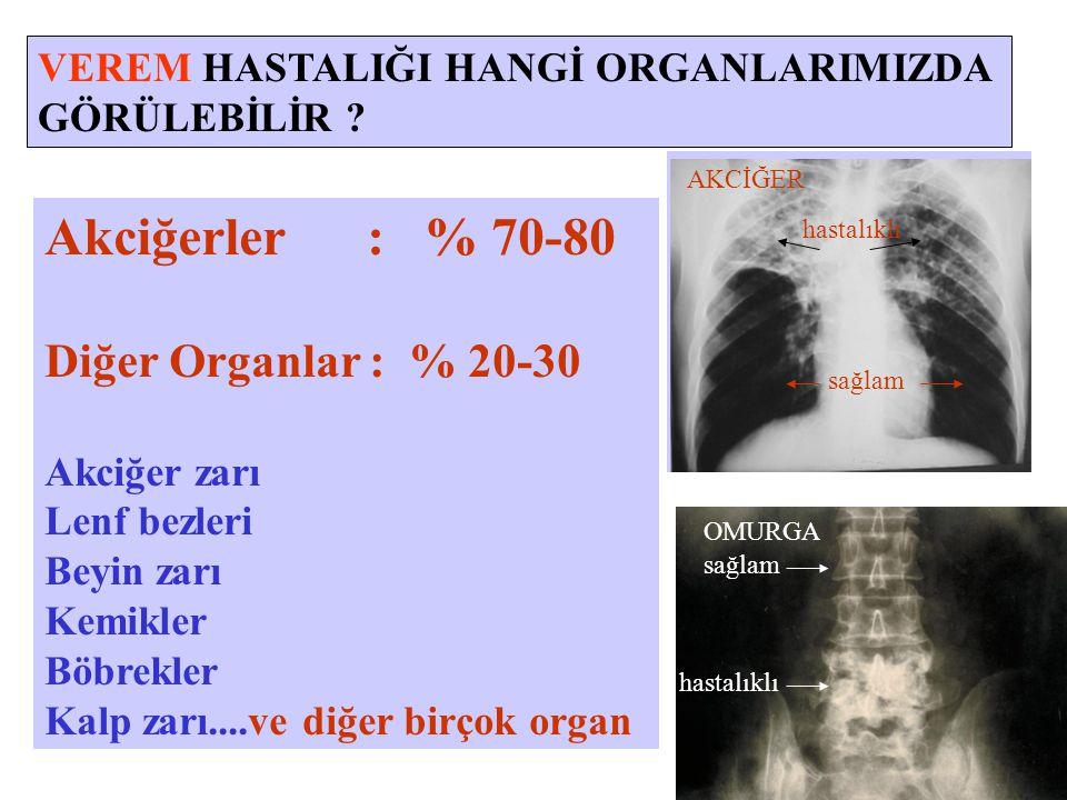 VEREM HASTALIĞI HANGİ ORGANLARIMIZDA GÖRÜLEBİLİR ? Akciğerler : % 70-80 Diğer Organlar : % 20-30 Akciğer zarı Lenf bezleri Beyin zarı Kemikler Böbrekl