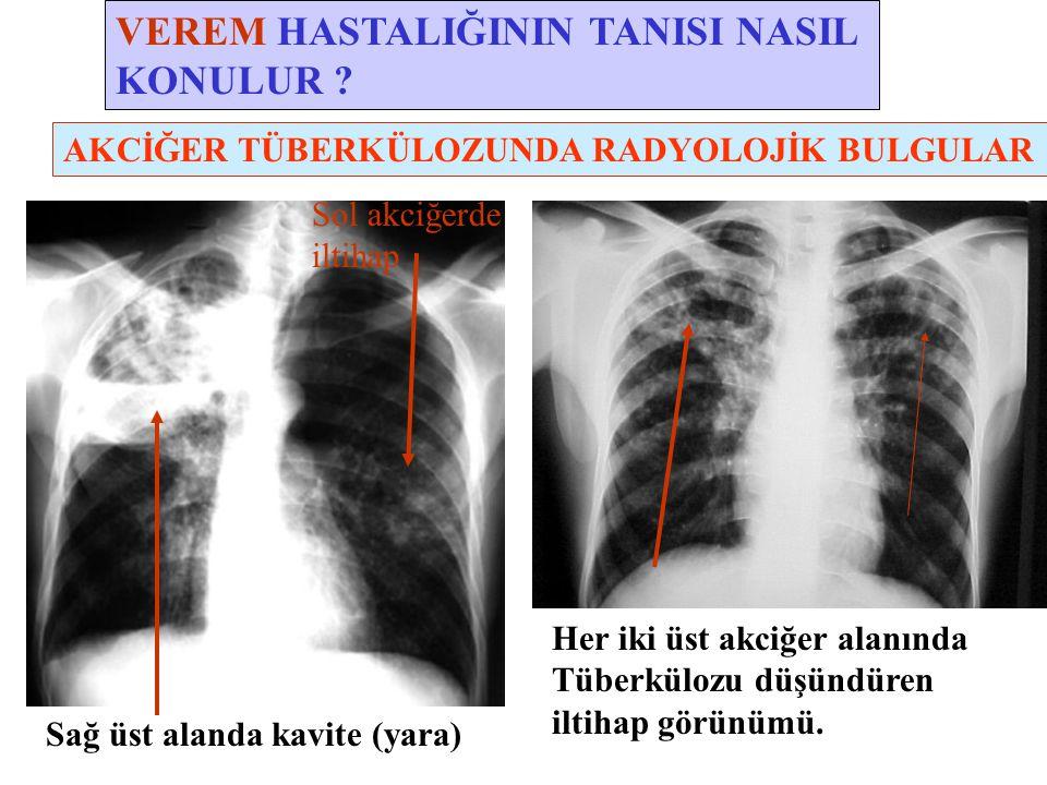 VEREM HASTALIĞININ TANISI NASIL KONULUR ? Her iki üst akciğer alanında Tüberkülozu düşündüren iltihap görünümü. Sağ üst alanda kavite (yara) AKCİĞER T