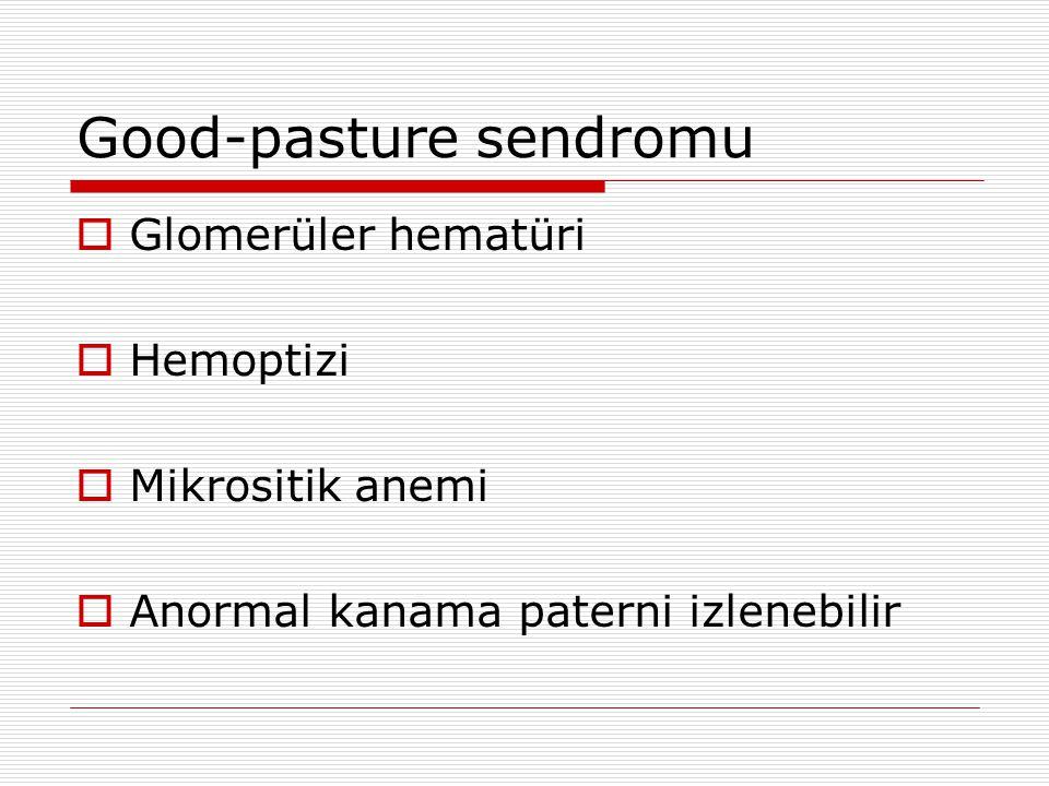 SLE  Glomerüler hematüri  Artrit  Ciltte rash  Serum ANA, C3 ve C4 değerlerinin yüksek