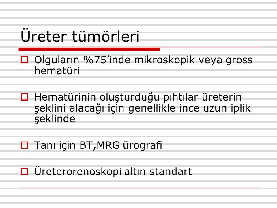 Üreter tümörleri  Olguların %75'inde mikroskopik veya gross hematüri  Hematürinin oluşturduğu pıhtılar üreterin şeklini alacağı için genellikle ince uzun iplik şeklinde  Tanı için BT,MRG ürografi  Üreterorenoskopi altın standart