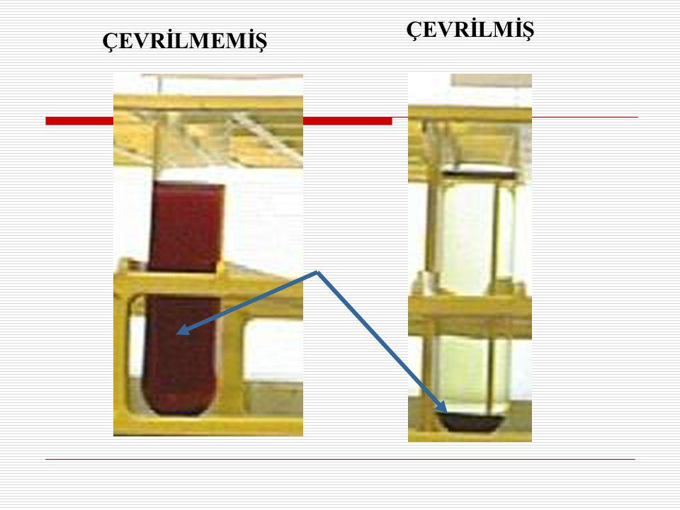 Bir litre suya veya 1 litre idrara bir damla kan damlatılması ile bile idrar kırmızı renk alır.