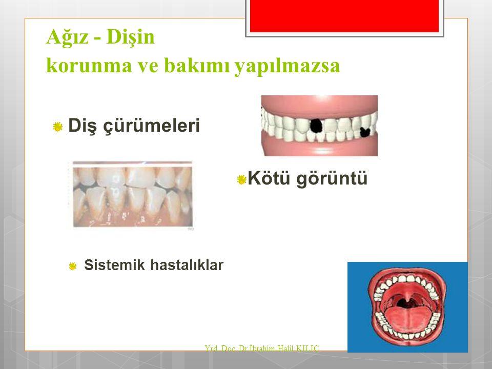Ağız - Dişin korunma ve bakımı yapılmazsa Diş çürümeleri Kötü görüntü Sistemik hastalıklar Yrd. Doç. Dr İbrahim Halil KILIÇ