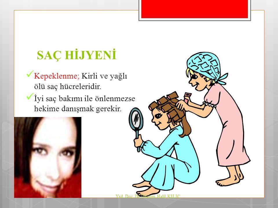 SAÇ HİJYENİ Kepeklenme; Kirli ve yağlı ölü saç hücreleridir. İyi saç bakımı ile önlenmezse hekime danışmak gerekir. Yrd. Doç. Dr İbrahim Halil KILIÇ