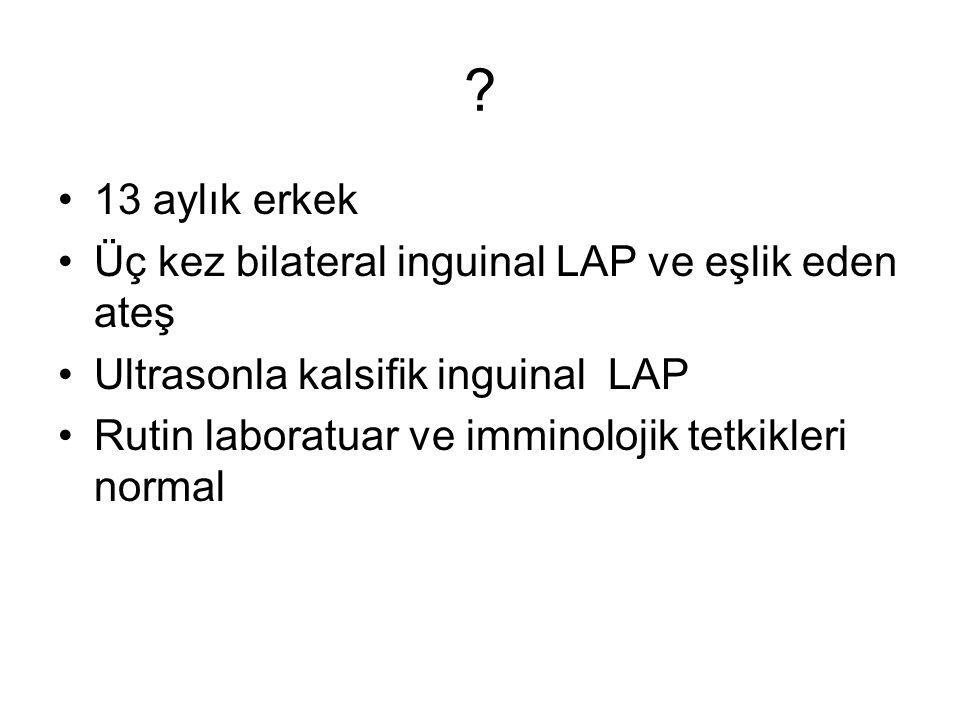 ? 13 aylık erkek Üç kez bilateral inguinal LAP ve eşlik eden ateş Ultrasonla kalsifik inguinal LAP Rutin laboratuar ve imminolojik tetkikleri normal